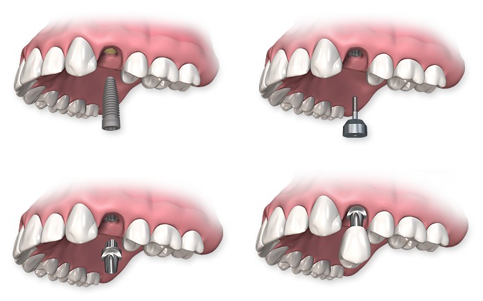 Implant Procedure