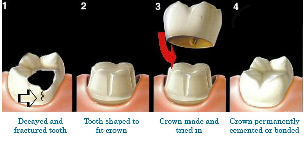 The steps of the dental crown procedure.