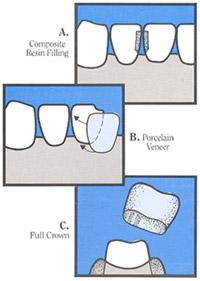 Dental Inlay & Onlay