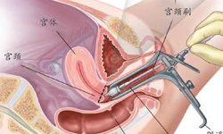 Loop Electrosurgical Excision Procedure