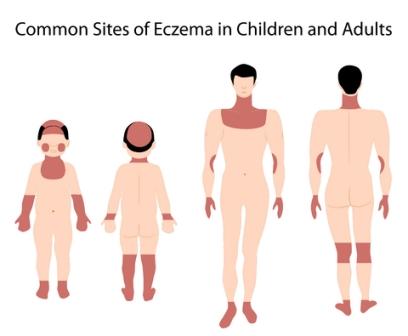 Symptoms of eczema