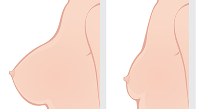What is Breast Reduction