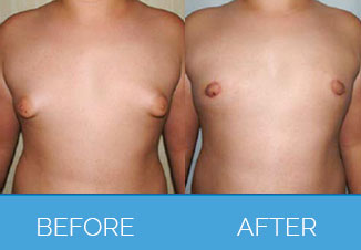 Male Breast Reduction (Gynaecomastia Surgery)