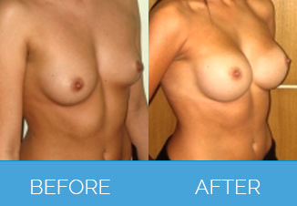 What is Breast Enlargement