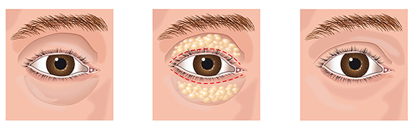 What is Eyebag & Eyelid Surgery (Blepharoplasty)
